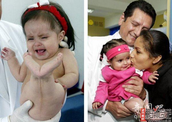 资讯生活【图】现实版美人鱼 印度婴儿患美人鱼综合征